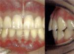 ・骨格的に上下の長さのバランスがとれている  ・上下の前歯が2mm程度重なっている