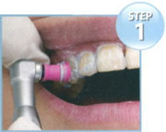 歯の表面をクリーニング